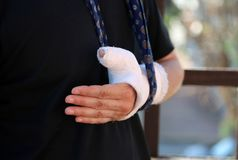 Person with arm around his neck due to fractured hand with cast royalty free stock photography