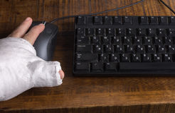 Person with arm cast using a computer mouse Stock Photo