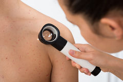 Person Examining Acne Skin With Dermatoscope. Close-up Of Person Hands Examining Acne Skin Of Man With Dermatoscope Stock Image