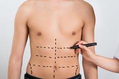 Person Hands Drawing Correction Lines en el abdomen Imagen de archivo libre de regalías