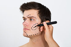 Person Hands Drawing Correction Lines On Male Face. Close-up Of Person Hands Drawing Correction Line With Pen On Male Face For Plastic Surgery stock photo