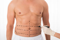 Person Hands Drawing Perforation Lines sullo stomaco immagini stock libere da diritti