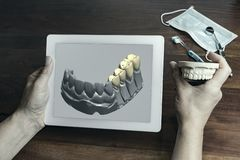 Person holding tablet showing render of fake teeth stock images