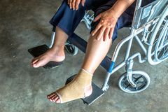 Person injured sit on wheelchair. Royalty Free Stock Photography