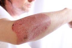 Person med plattapsoriasins av armen Arkivbild