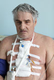 Person with pacemaker Royalty Free Stock Photography