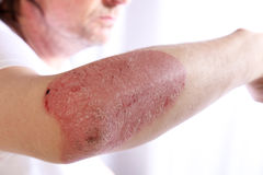 Person with plaque psoriasis of the arm. Causing an inflamed red patch of skin covered in silvery scales to extend from the elbow, a chronic lifelong disease Stock Photography