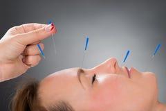 Person Putting Acupuncture Needle On affronta della donna fotografia stock