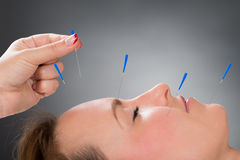 Person Putting Acupuncture Needle On Face Of Woman. Close-up Person Hands Putting Acupuncture Needle On Face Of Young Woman Stock Photo
