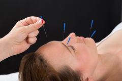 Person Putting Acupuncture Needle On-Gezicht van Vrouw royalty-vrije stock foto