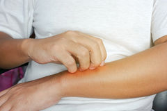 Person scratching at itchy skin on their arms. Closeup stock photography
