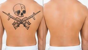 Person Showing Laser Tattoo Removal-Behandlungs-an Rückseite Stockbilder