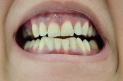 Person showing very ugly broken and yellow teeth stock images