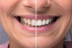 Person Teeth Before And After Whitening. Close-up Detail Of Person Teeth Showing Before And After Whitening stock images