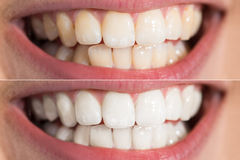 Person Teeth Before And After Whitening. Close-up Detail Of Person Teeth Showing Before And After Whitening Royalty Free Stock Photography