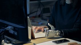 Persona discapacitada con los tipos biónicos de la mano en un ordenador portátil Trabajo prostético de la mano del metal almacen de video