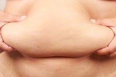 Persona gorda de la barriga Foto de archivo
