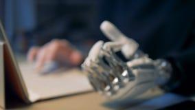 Persona handicappata che lavora con la mano prostetica archivi video