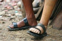 Personas discapacitadas pobres Fotos de archivo libres de regalías
