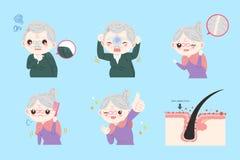 Personas mayores con problema de la caspa Foto de archivo