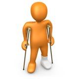 Personne avec le pied cassé Photo stock