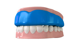 Gum Guard Fitted On Closed False Teeth. A perspective view of a regular blue sports gum guard fitted to a set of closed false teeth on an isolated background stock photos