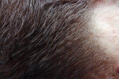 Perte de cheveux de la tête photos stock