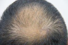 Perte des cheveux photo stock