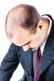 Perte des cheveux photographie stock