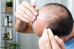 Perte des cheveux photos stock