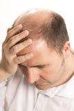 Perte des cheveux d'homme d'alopécie de calvitie d'isolement Photo libre de droits