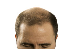 Perte des cheveux d'homme d'alopécie de calvitie d'isolement Image libre de droits