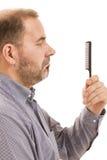 Perte des cheveux d'homme d'alopécie de calvitie d'isolement Photos libres de droits