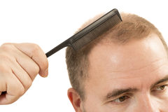 Perte des cheveux de calvitie d'alopécie d'homme d'isolement photo stock
