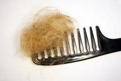 Perte des cheveux et peigne Photos libres de droits