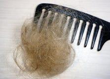 Perte des cheveux et peigne Images libres de droits