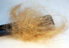 Perte des cheveux et peigne Photo libre de droits