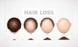 Perte des cheveux Graphique de quatre étapes d'alopécie Photo stock