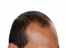 Perte des cheveux, mâle photographie stock