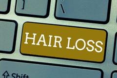 Perte des cheveux des textes d'écriture Concept signifiant la perte de cheveux de huanalysis du chef ou de toute partie du corps  images libres de droits
