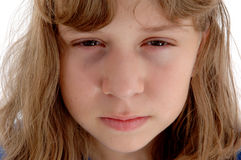 Pessimistic Adolescent. The depressed and cynical face of a 13 year old girl Stock Photography
