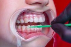 A pessoa do procedimento do alvejante dos dentes clarea os dentes no expansor da boca fotos de stock