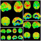 Pet Ct Alzheimer Dementia Pattern Collage Royalty Free Stock Photos
