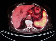 Pet/ct fr2 nuclear medicine. Pet/ct image on the level of liver ,red color are organs ,yellow FDG isotope ,which is very specific for oncological diagnostic royalty free stock photography