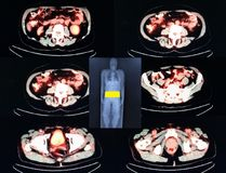 Pet/ct   level of  intestines Stock Image