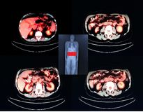 Pet/ct   level of  kidneys Stock Images