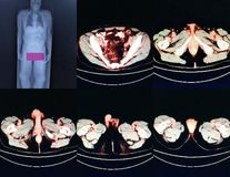 Pet/ct level of pelvis royalty free stock images