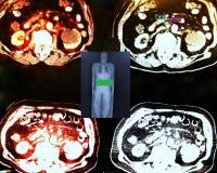 pet/ct på nivå av den njur- tumöret arkivbild