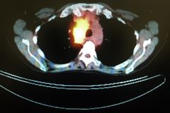 Pet ct tumor mediastinum penetrating lung frame Stock Photography