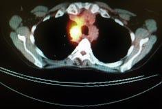 Pet ct tumor mediastinum penetrating lung frame Royalty Free Stock Images